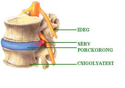 A gerincsérv előjelei és kezelése